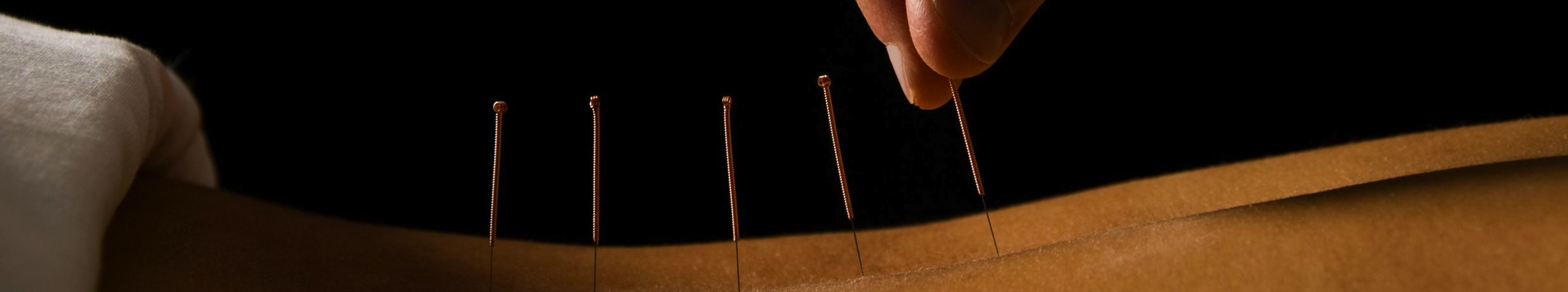 banniere acupuncture